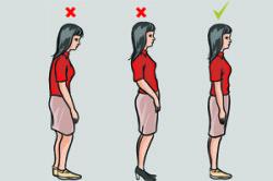 Правильная осанка при остеохондрозе