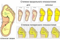 Плоскостопие - причина бурсита
