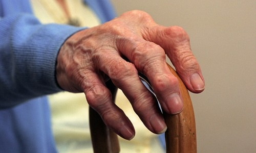Проблема лечения ревматоидного артрита