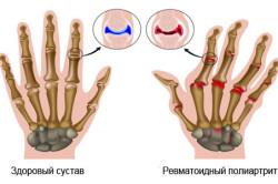 Схема ревматоидного полиартрита