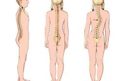 Сколиоз - причина грудного остеохондроза