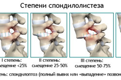 Спондилез пояснично-крестцового отдела и его лечение