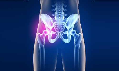 Проблема коксартоза тазобедренных суставов