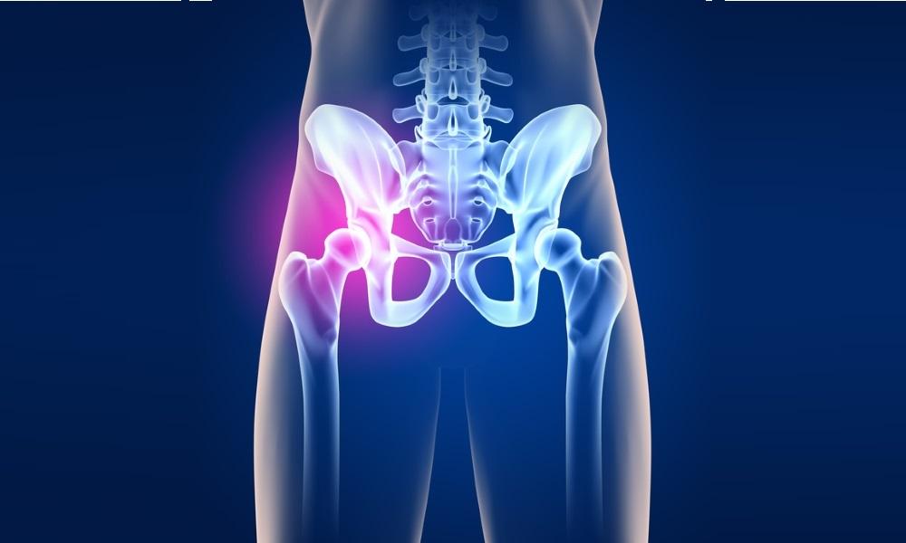 Проблема коксартроза тазобедренного сустава