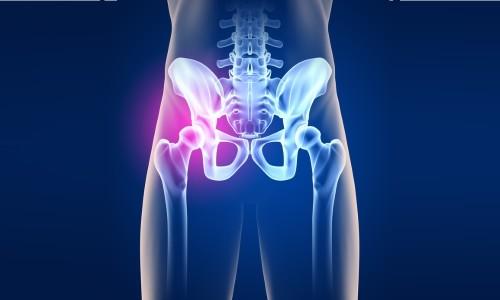 Проблема артрита тазобедренных суставов