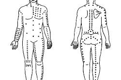 Схема точечного массажа при остеохондрозе