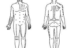 Схема точечного массажа