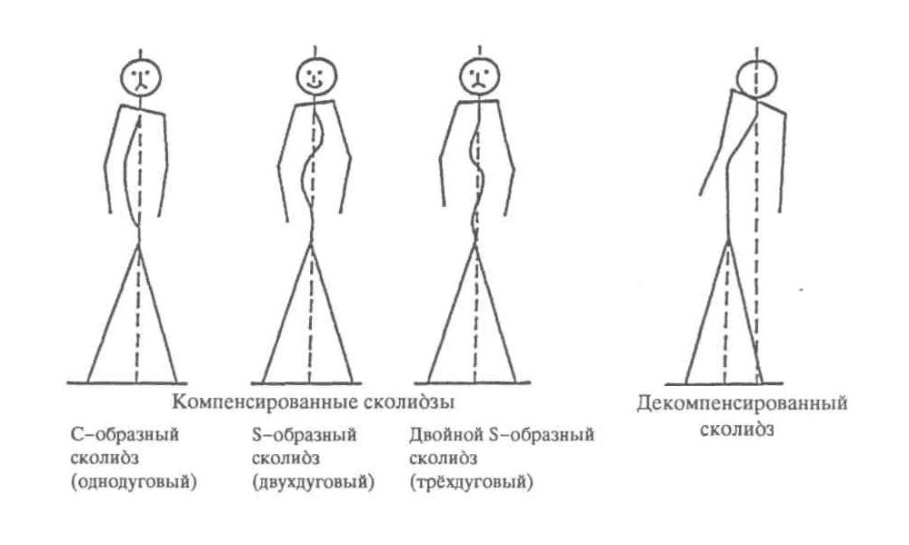 Анатомия мышцы осанки