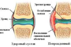 Изменения в суставе при полиартрите