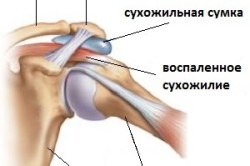 Схема плечелопаточного периартрита