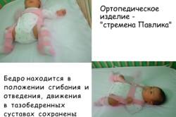 Способы лечения  дисплазии тазобедренных суставов у ребенка