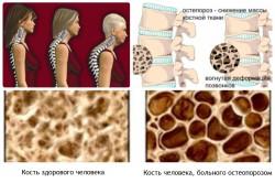 Сравнение остеопороза