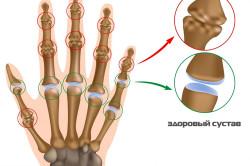 Схема артрита суставов