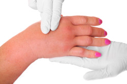 Артрит - последствие травмы руки