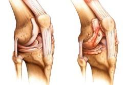 Воспаление в коленном суставе при артрите