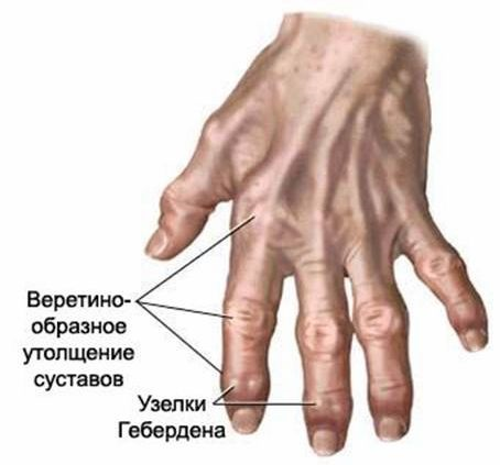 болезни суставов пальцев лечение