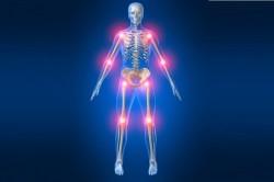 Боль в суставах при артрите