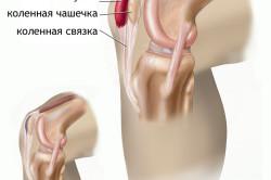 Схема бурсита колена