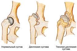 Стадии дисплазии тазобедренных суставов