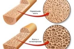 Сравнение здоровой кости и кости с остеопорозом