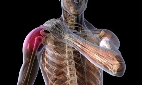 Проблема артроза плечевого сустава