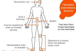 Основные симптомы реактивного артрита