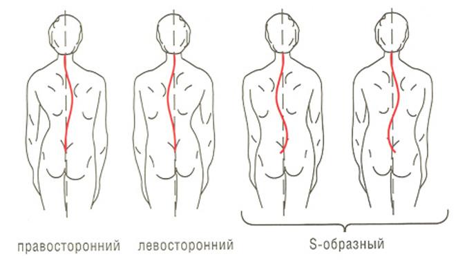 Функциональный сколиоз 0-1 степени