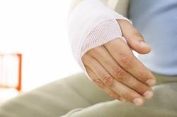 Частые переломы при остеопорозе