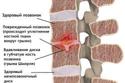 Псориатический артрит позвоночника или грыжа Шморля