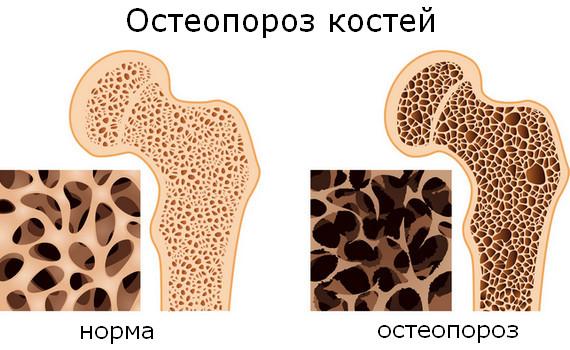 В чем есть кальций для костей