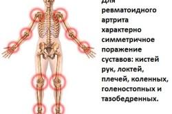 Распространение артрита