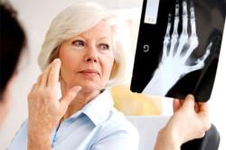 Назначение способа лечения артрита врачом