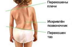 Основные симптомы сколиоза