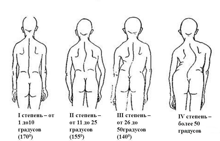 Комплекс общеразвивающих упражнений при сколиозе