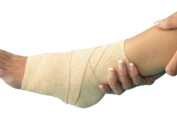 Развитие артроза после травмы
