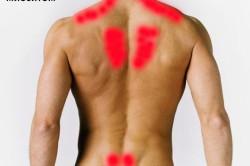 Частые зоны поражения миозитом на спине
