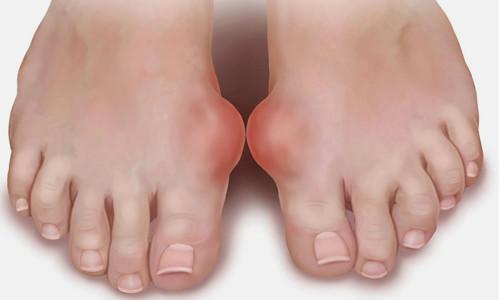 Что такое бурсит стопы