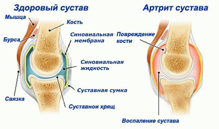 Фолиева кислота влияет на сустави лечение суставов холодом по бубновскому