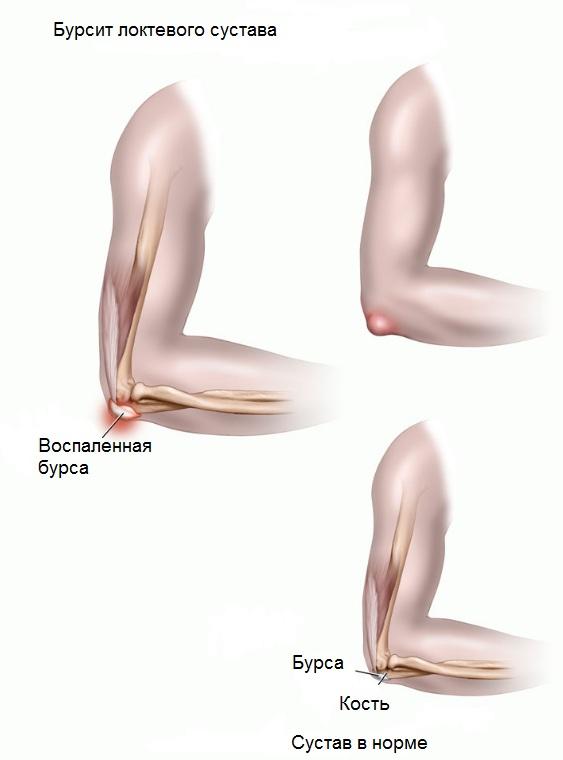 вирусный артрит локтевого сустава симптомы и лечение