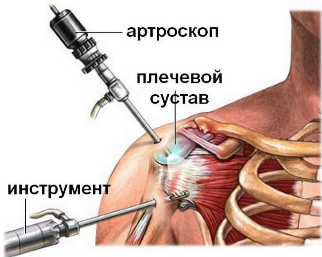 Обзор периартрита плечевого сустава суть болезни причины симптомы и лечение