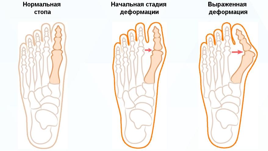 Подагра на пальце ноги: причины, симптомы и лечение