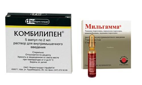 Для лечения неврологических патологий и купирования их признаков пациентам часто назначают Мильгамму и Комбилипен
